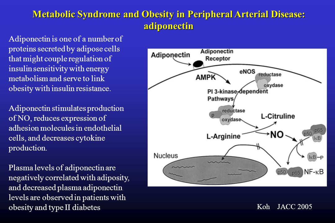 Metabolic Syndrome and Obesity in Peripheral Arterial Disease: adiponectin