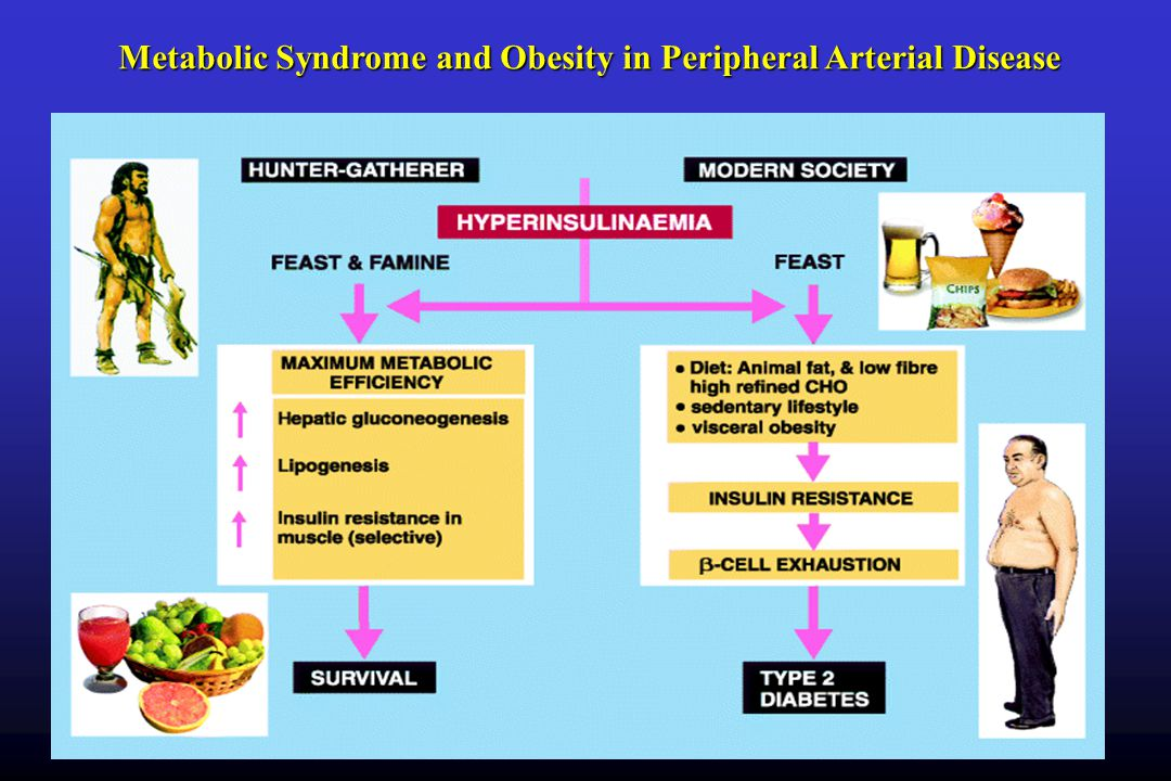 Metabolic Syndrome and Obesity in Peripheral Arterial Disease