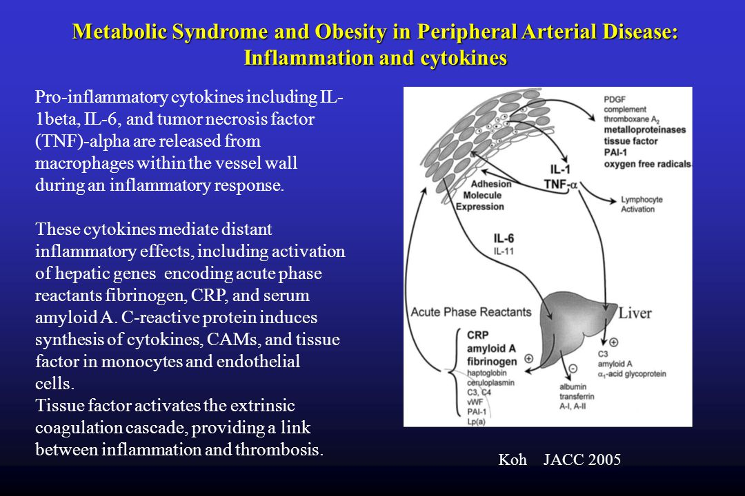 Metabolic Syndrome and Obesity in Peripheral Arterial Disease: Inflammation and cytokines
