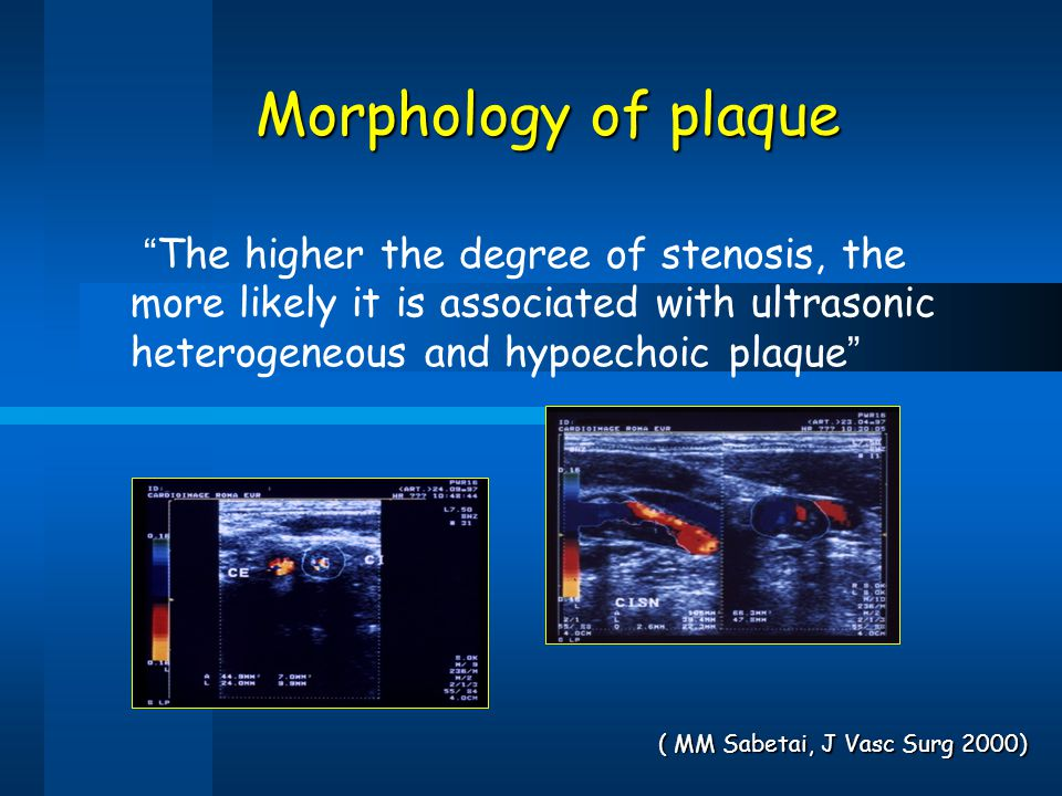 Morphology of plaque The higher the degree of stenosis, the more likely it is associated with ultrasonic heterogeneous and hypoechoic plaque