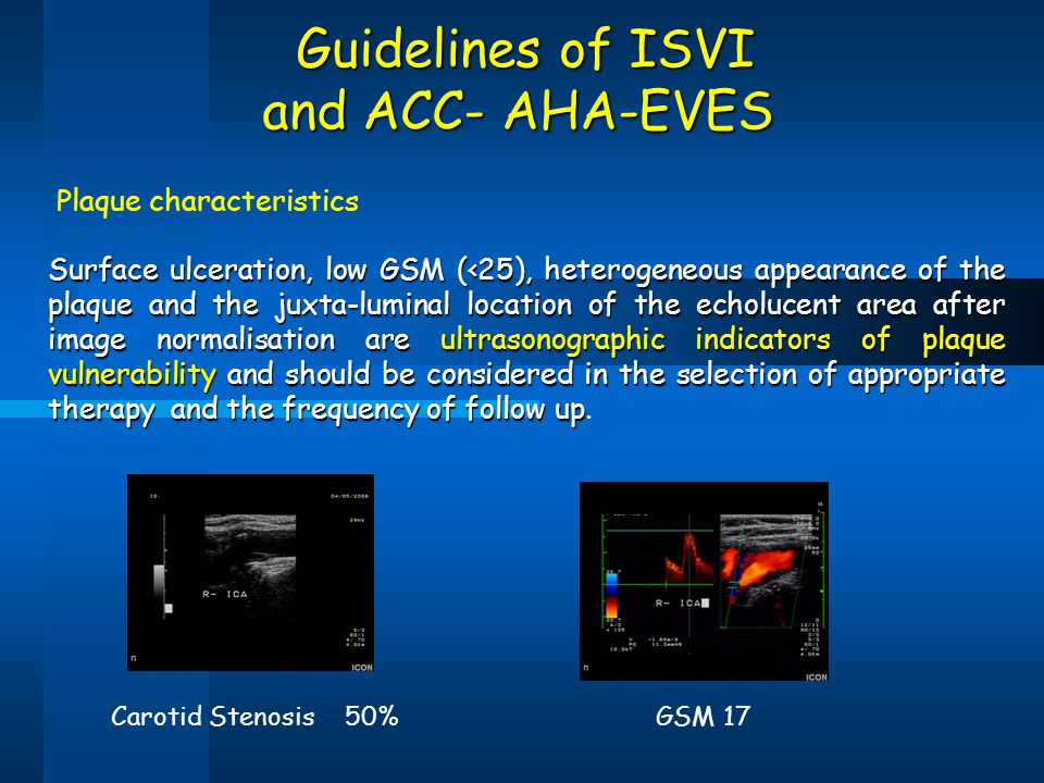 Guidelines of ISVI and ACC- AHA-EVES Plaque characteristics