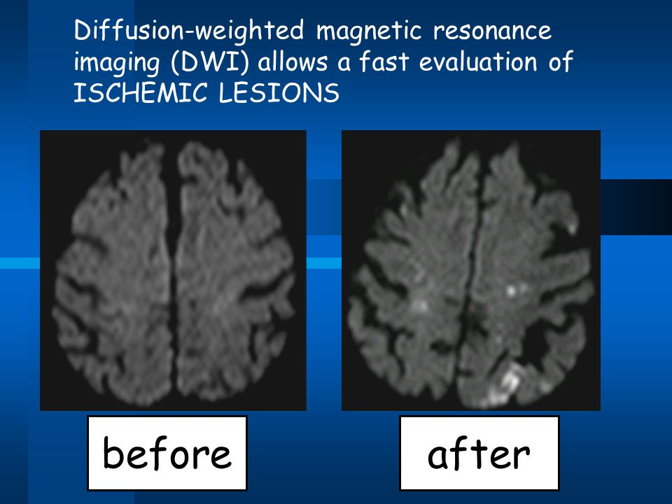 Diffusion-weighted magnetic resonance imaging (DWI) allows a fast evaluation of ISCHEMIC LESIONS