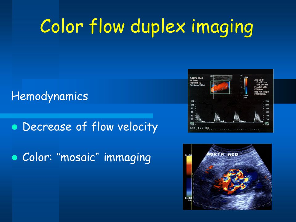 Color flow duplex imaging