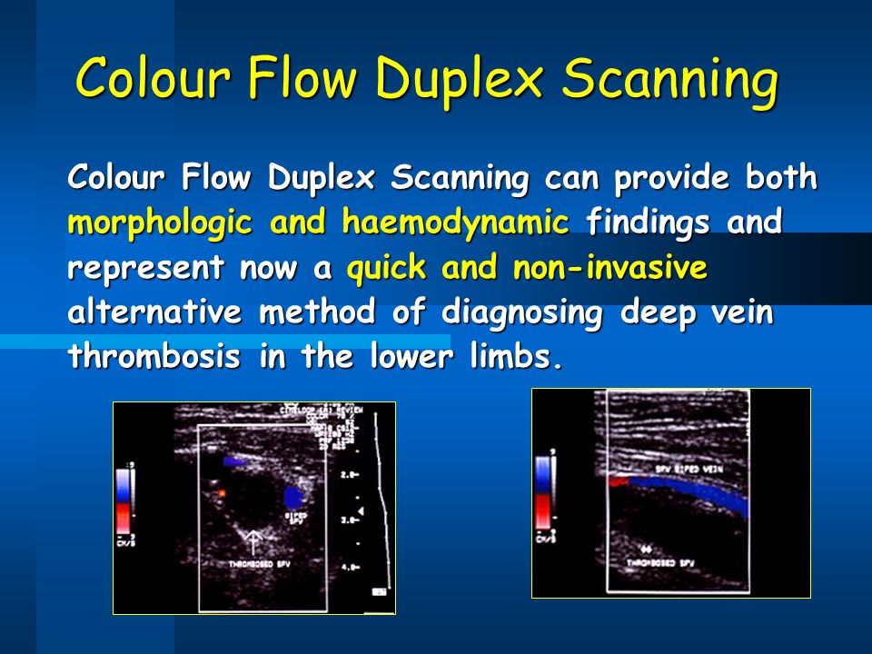 Colour Flow Duplex Scanning
