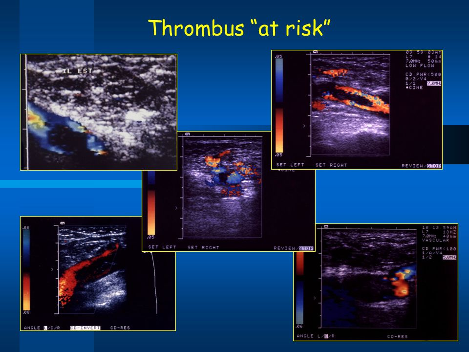 Thrombus at risk