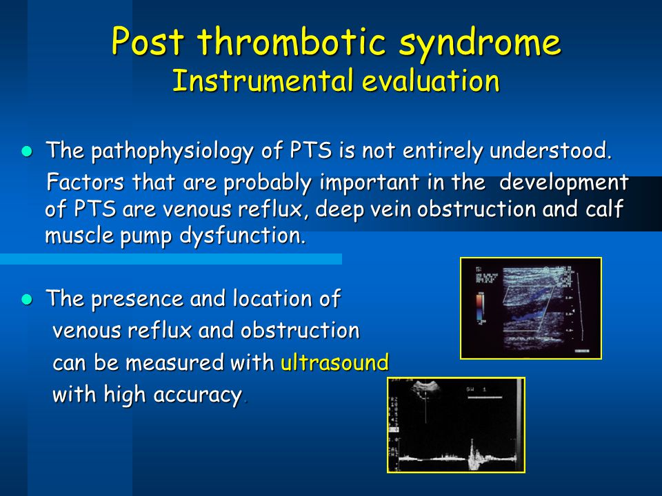 Post thrombotic syndrome Instrumental evaluation