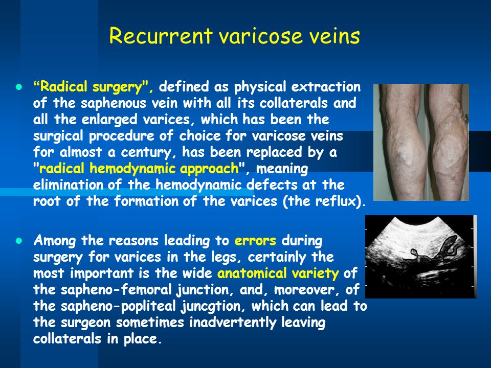 Recurrent varicose veins