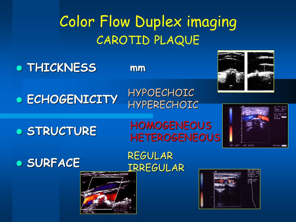 Color Flow Duplex imaging CAROTID PLAQUE