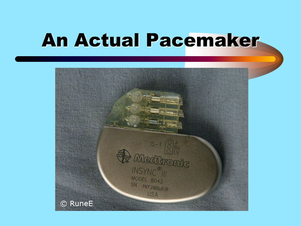 An Actual Pacemaker