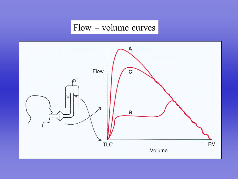 07-Mechanics.ppt Flow – volume curves revised 1/9/04