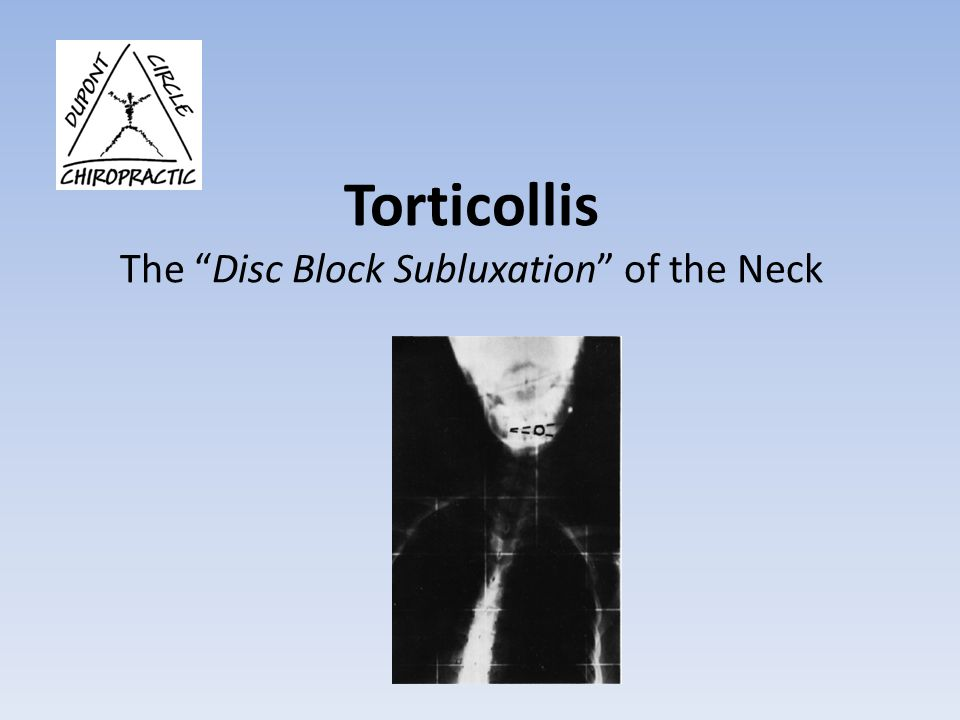 Torticollis The Disc Block Subluxation of the Neck