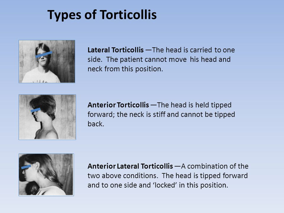 Types of Torticollis Lateral Torticollis —The head is carried to one side. The patient cannot move his head and neck from this position.