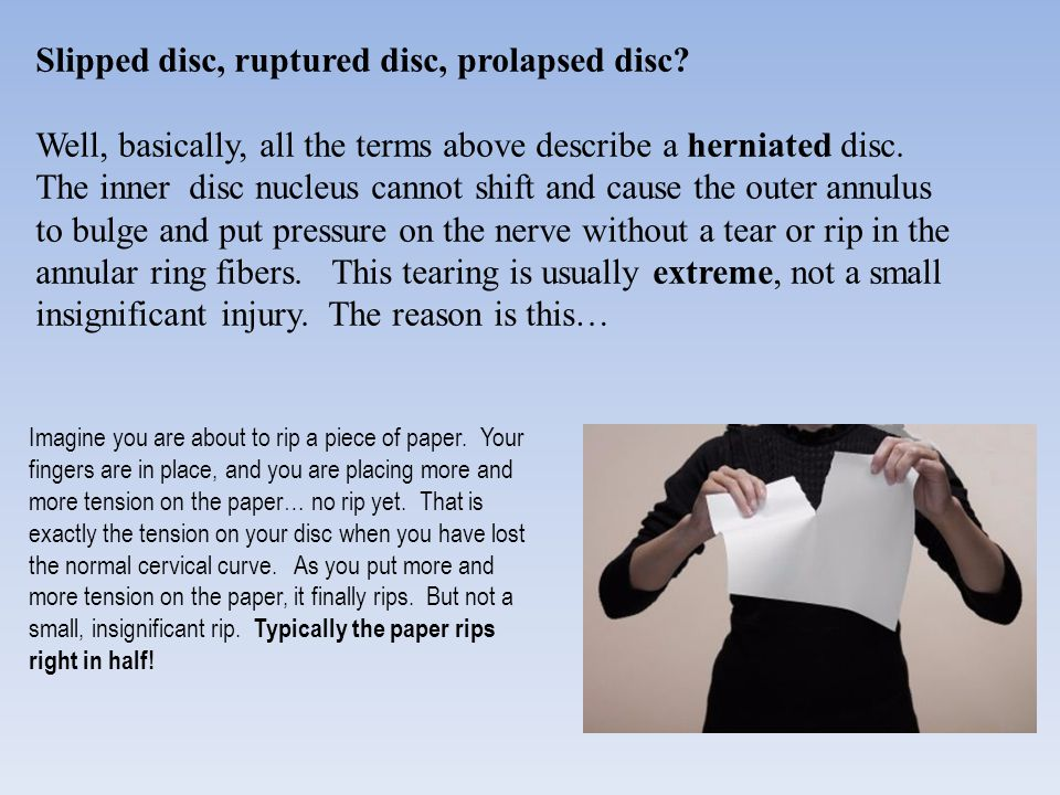 Slipped disc, ruptured disc, prolapsed disc