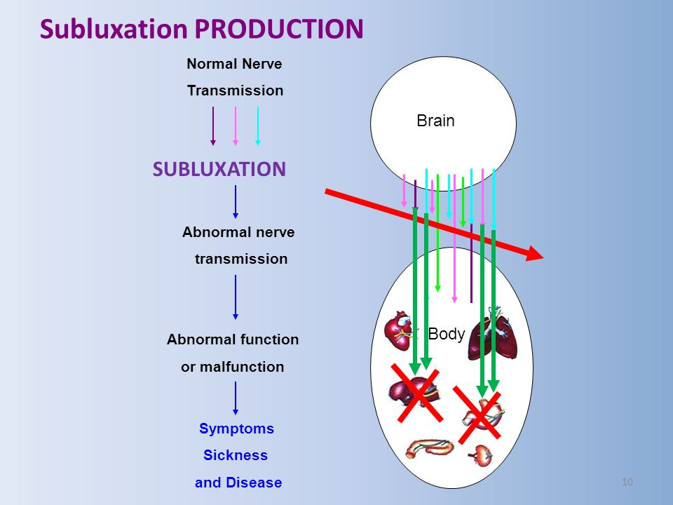 Subluxation PRODUCTION