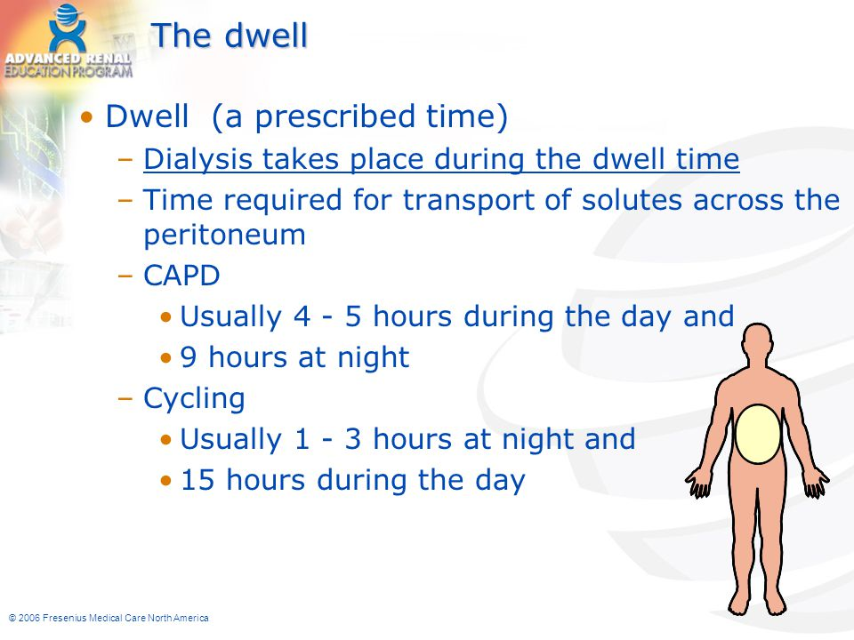 The dwell Dwell (a prescribed time)