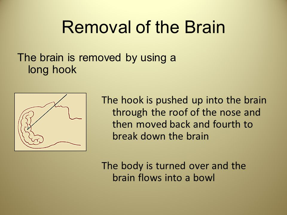 Removal of the Brain The brain is removed by using a long hook
