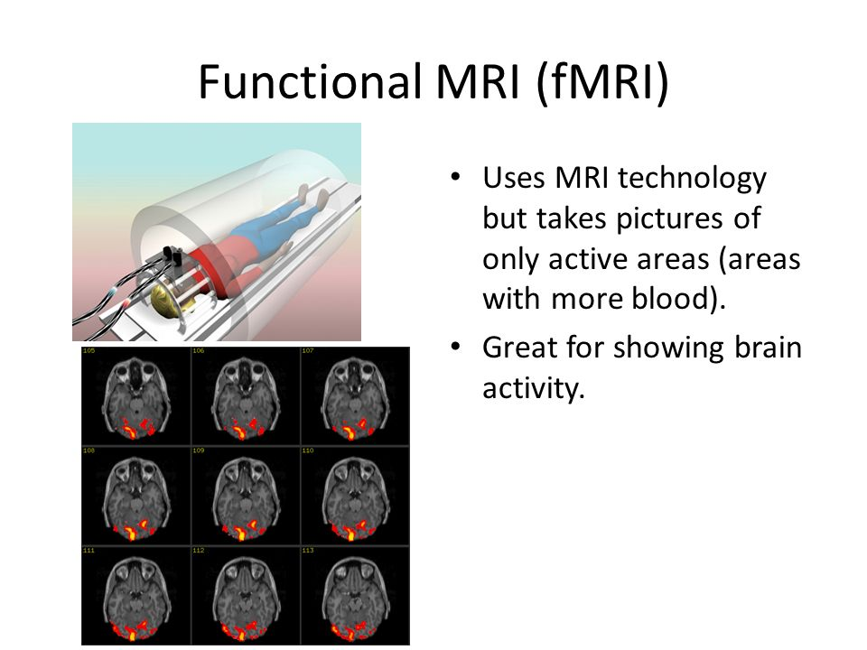 Functional MRI (fMRI) Uses MRI technology but takes pictures of only active areas (areas with more blood).
