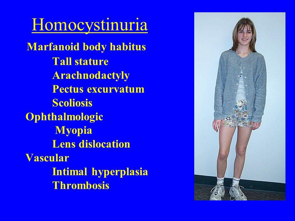 Homocystinuria Marfanoid body habitus. Tall stature. Arachnodactyly
