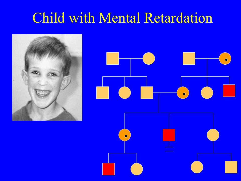 Child with Mental Retardation