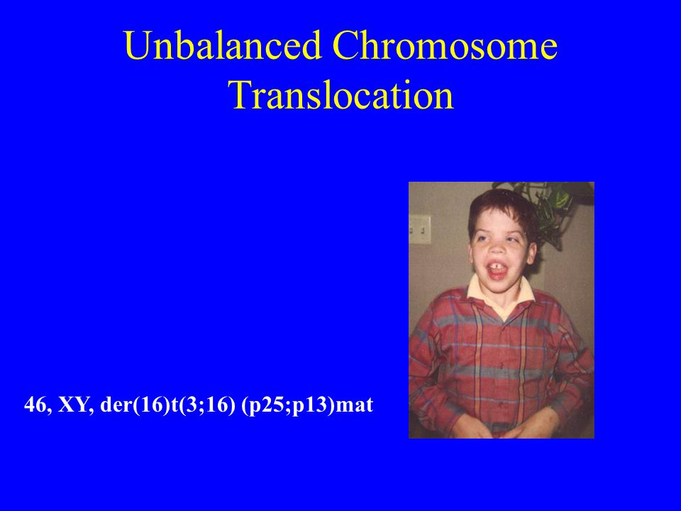Unbalanced Chromosome Translocation