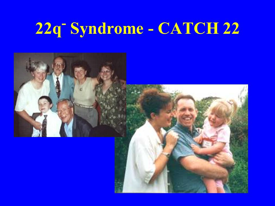 22q- Syndrome - CATCH 22