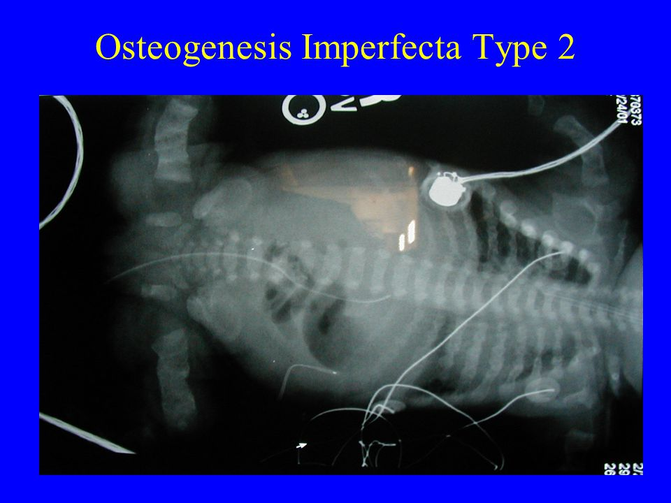 Osteogenesis Imperfecta Type 2