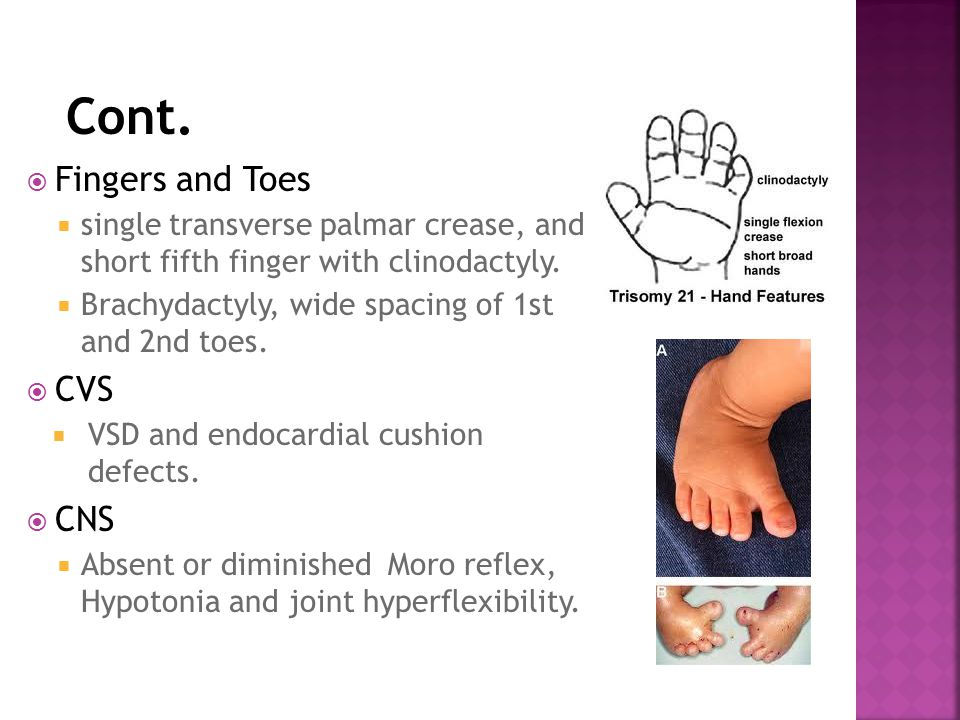 Cont. Fingers and Toes CVS CNS