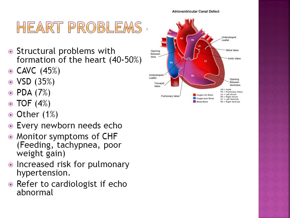 Heart problems 40- Structural problems with formation of the heart (40-50%) CAVC (45%) VSD (35%)
