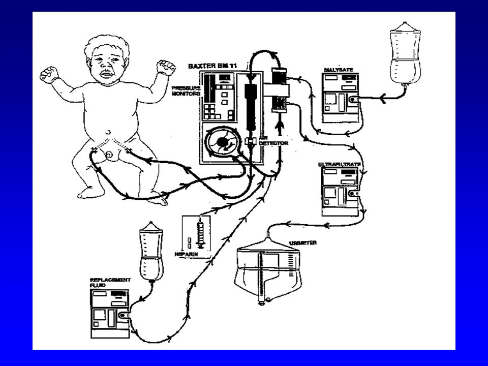 This is a schematic of one of our old CRRT set-ups