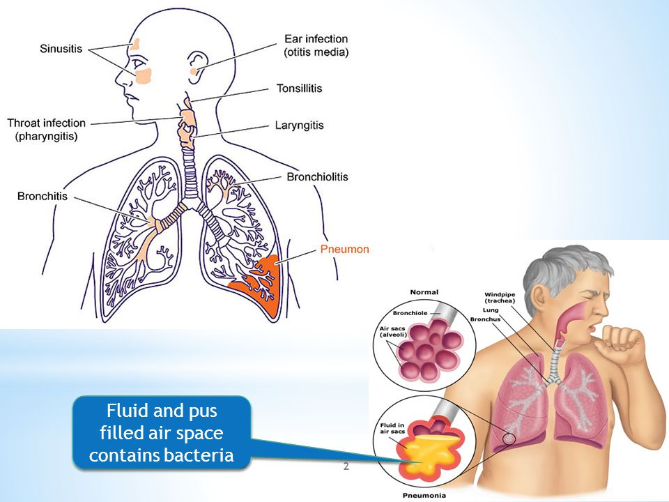 Fluid and pus filled air space contains bacteria