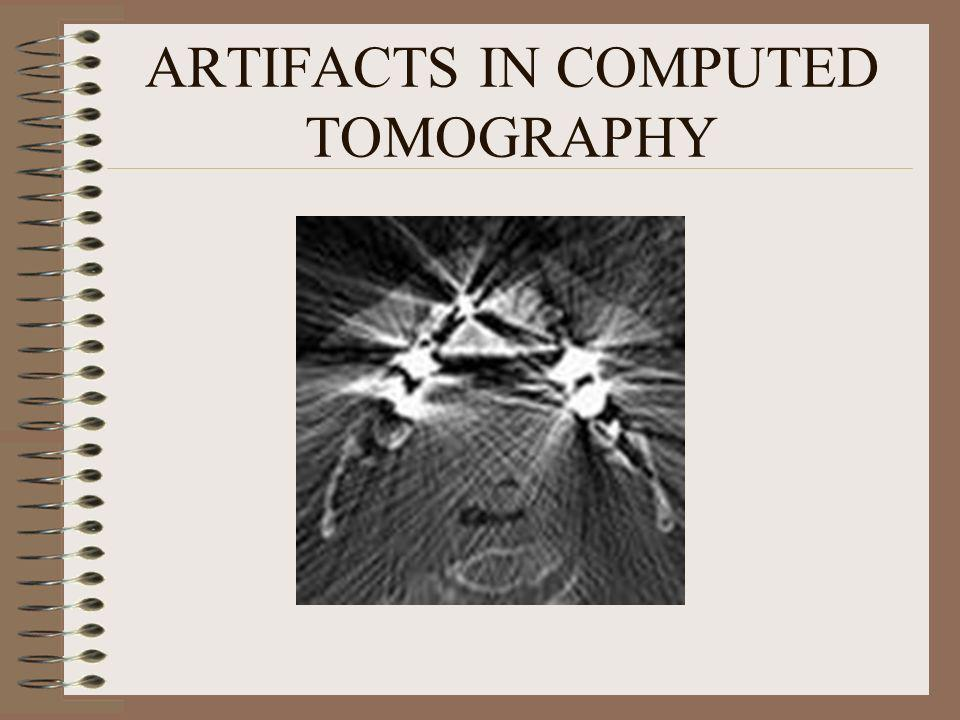 ARTIFACTS IN COMPUTED TOMOGRAPHY