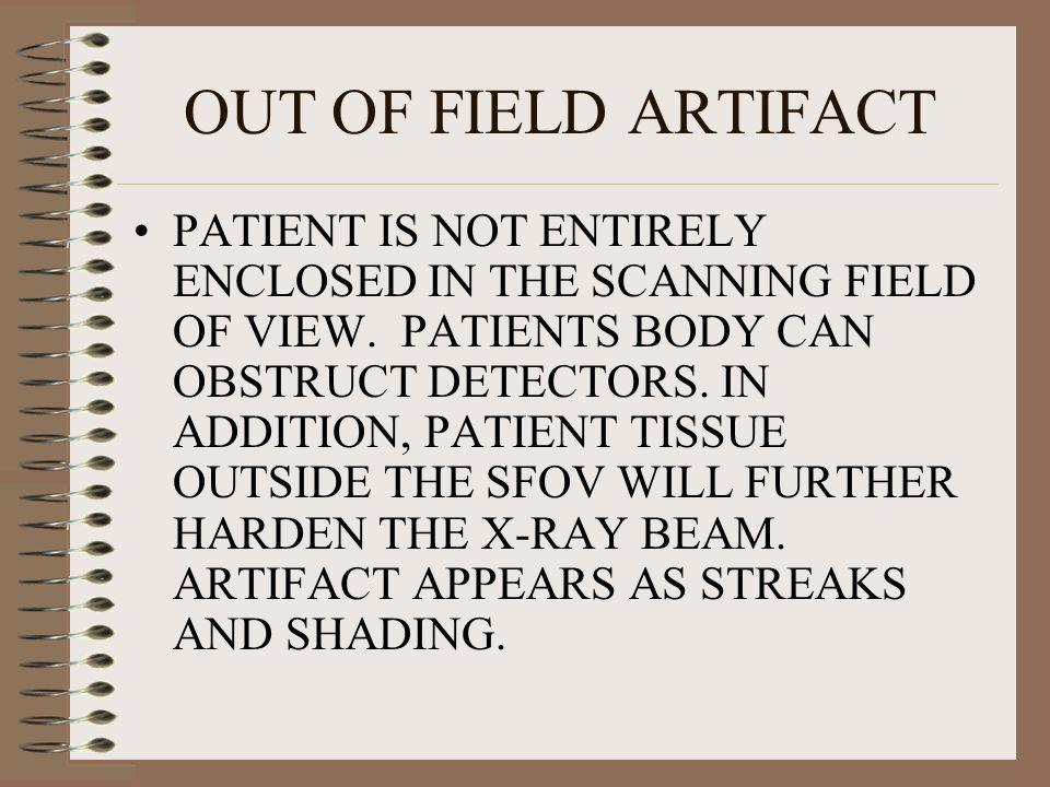 OUT OF FIELD ARTIFACT