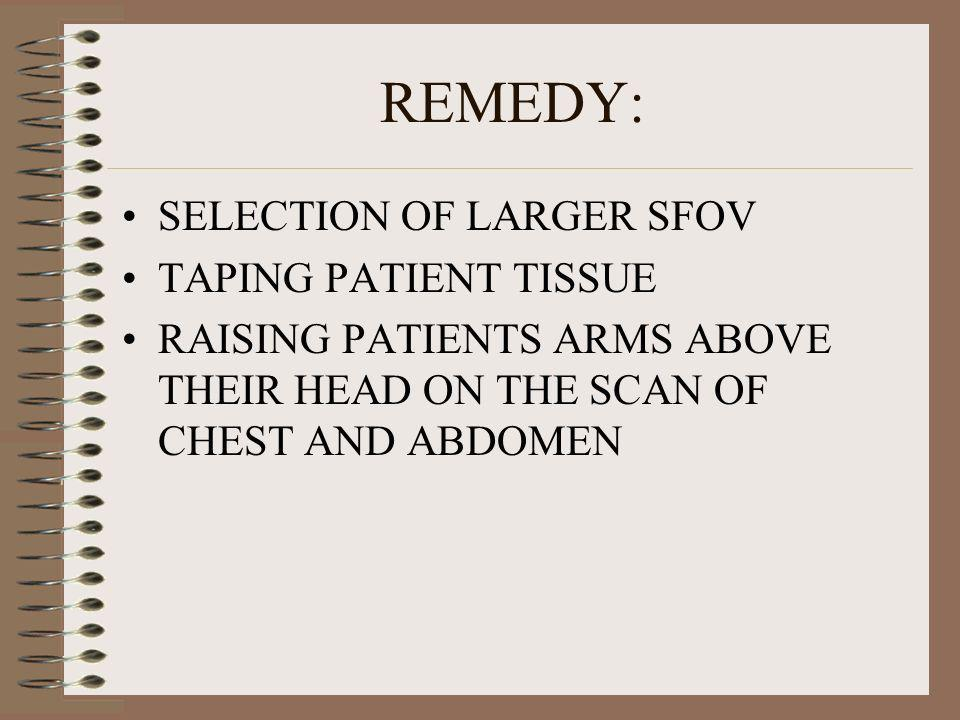 REMEDY: SELECTION OF LARGER SFOV TAPING PATIENT TISSUE