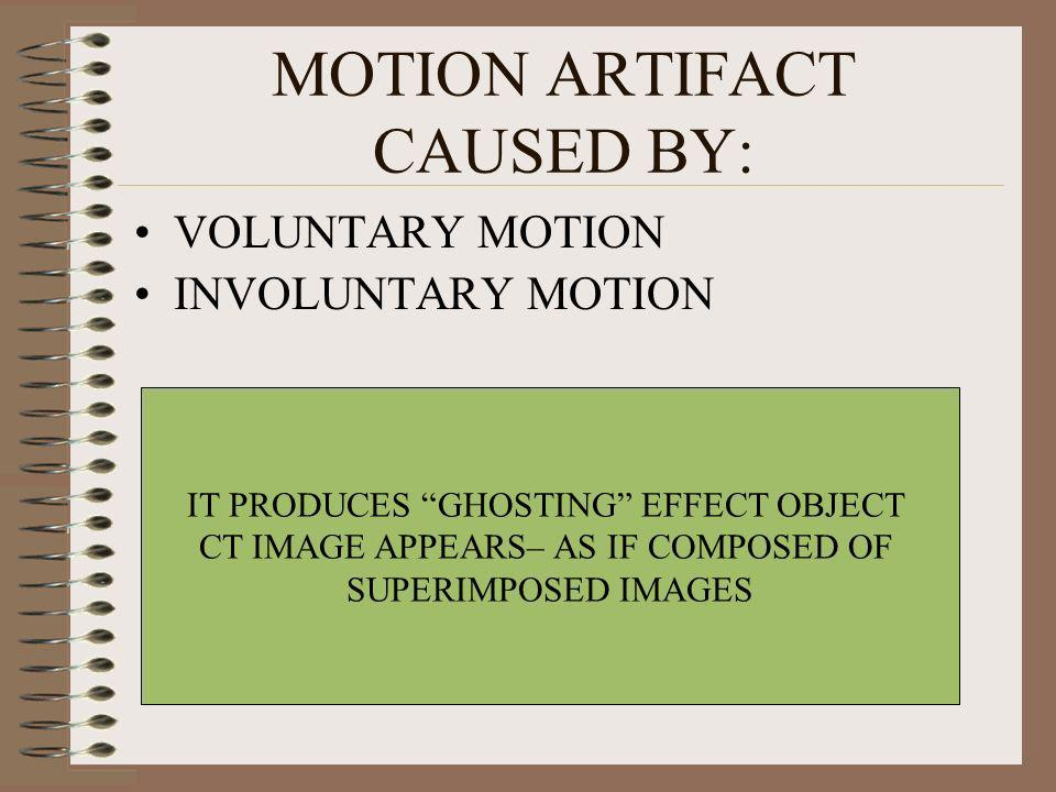 MOTION ARTIFACT CAUSED BY:
