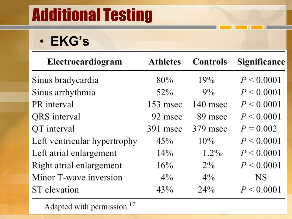 Additional Testing EKG's