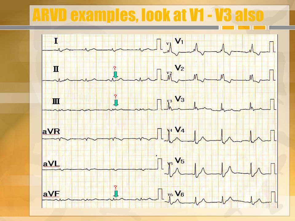 ARVD examples, look at V1 - V3 also