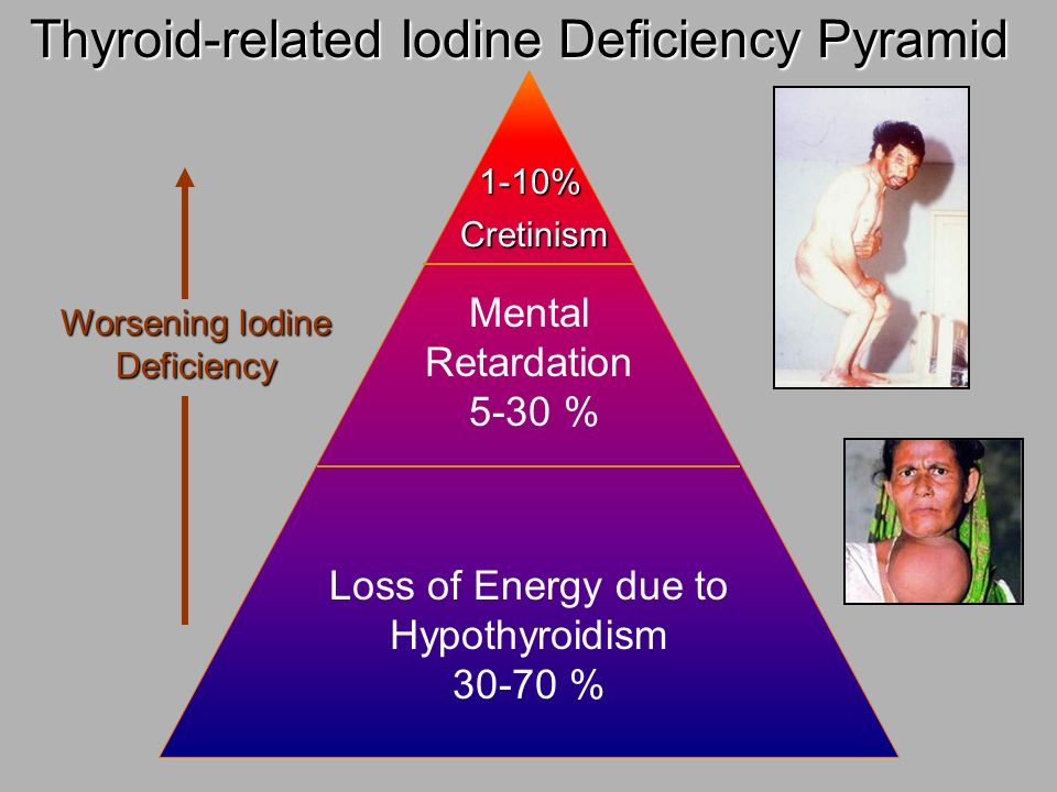 Thyroid-related Iodine Deficiency Pyramid