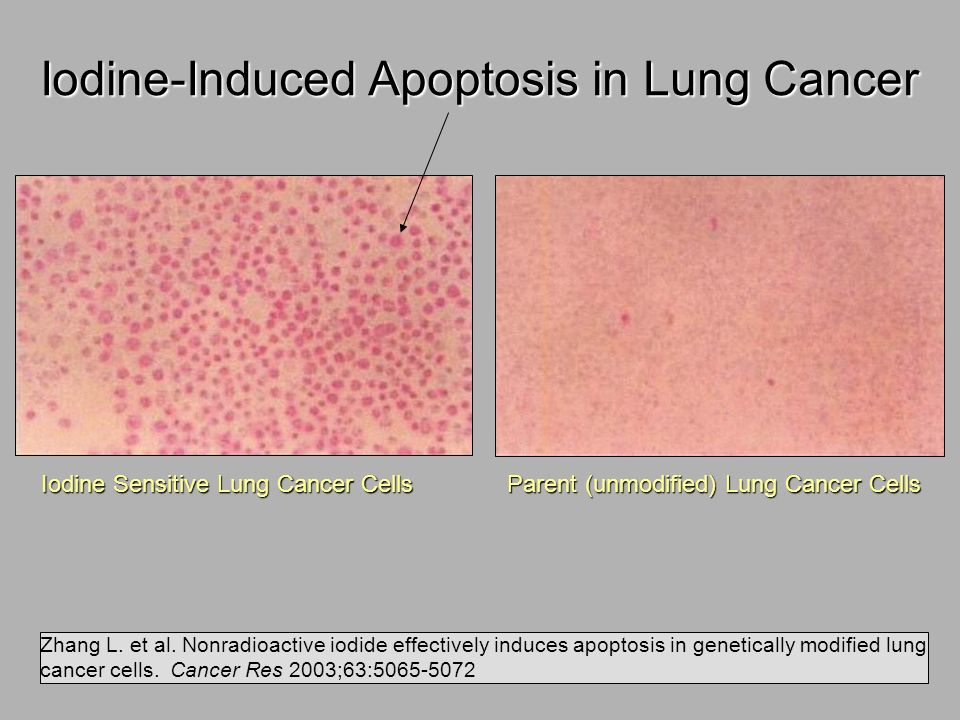 Iodine-Induced Apoptosis in Lung Cancer