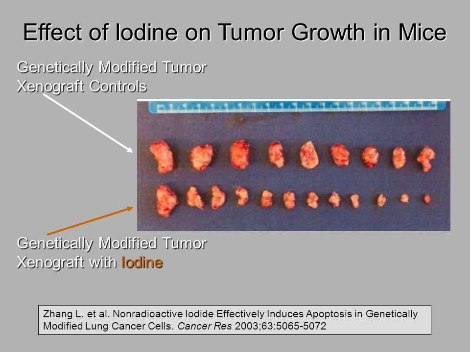 Effect of Iodine on Tumor Growth in Mice