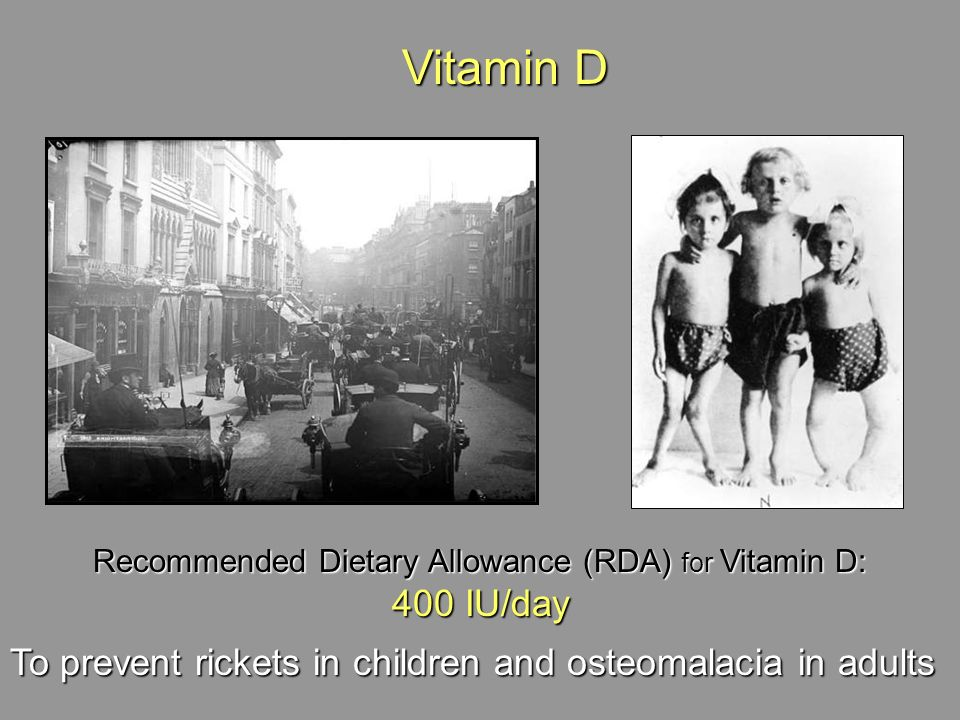 Recommended Dietary Allowance (RDA) for Vitamin D: