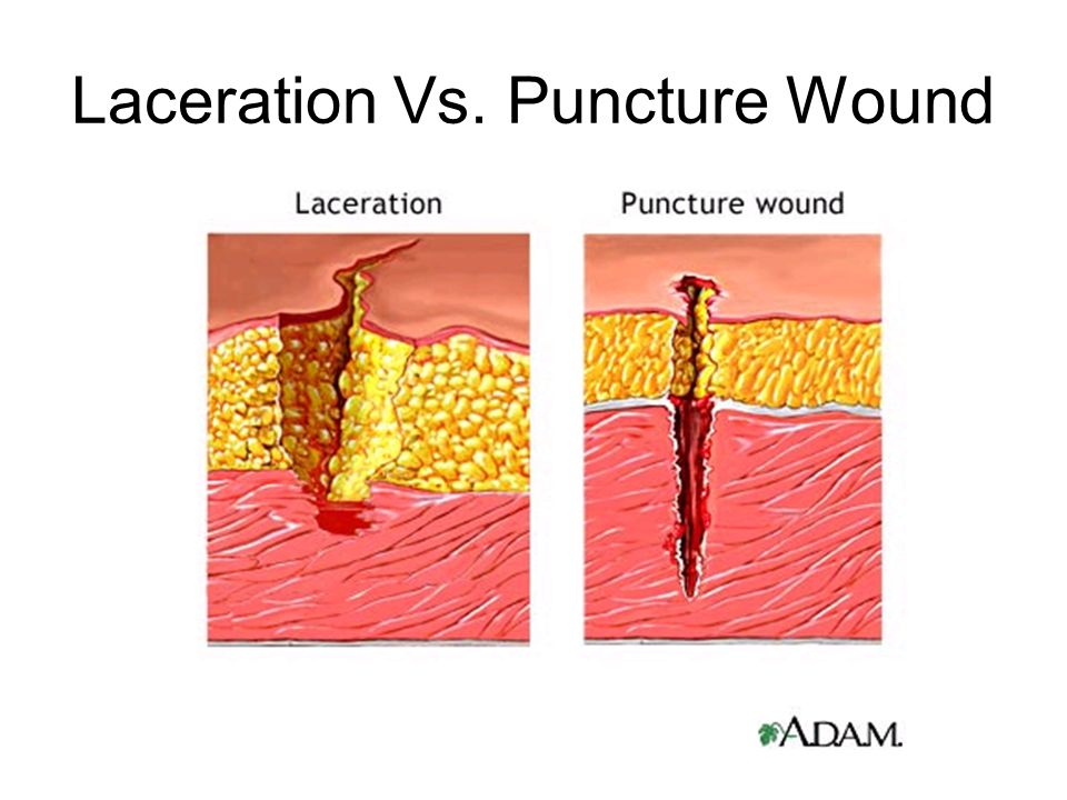 Laceration Vs. Puncture Wound