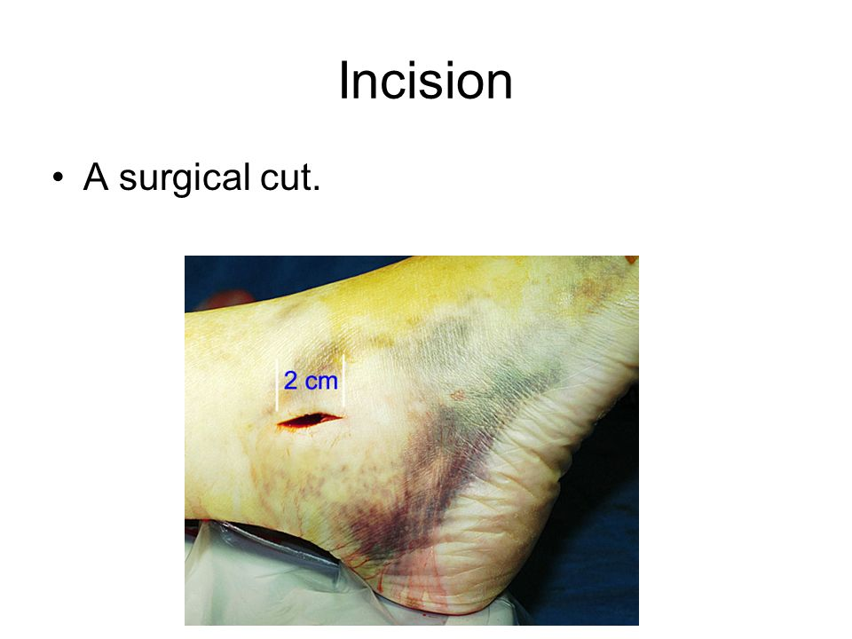 Incision A surgical cut.