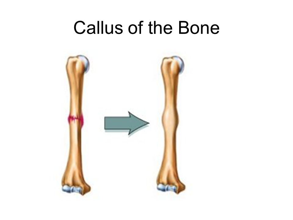 Callus of the Bone
