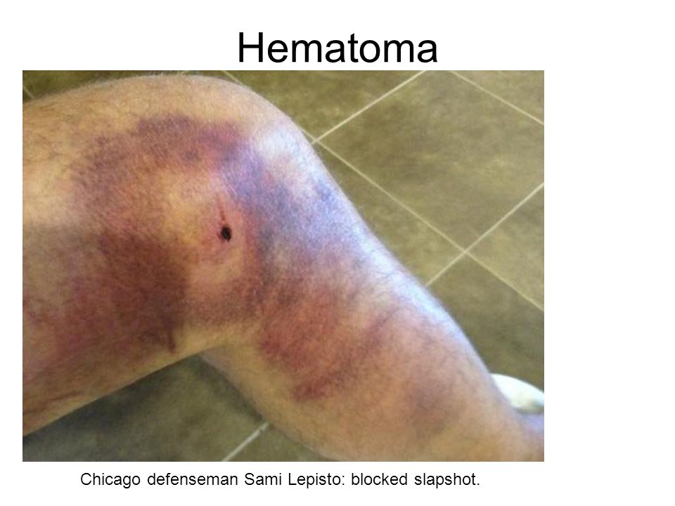 Hematoma Chicago defenseman Sami Lepisto