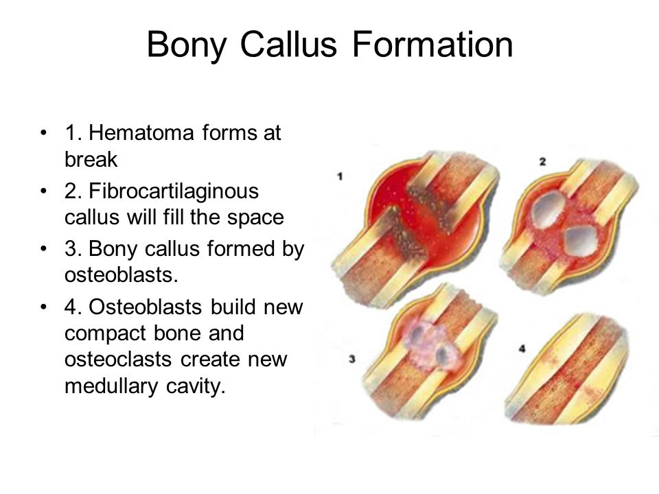 Bony Callus Formation 1. Hematoma forms at break