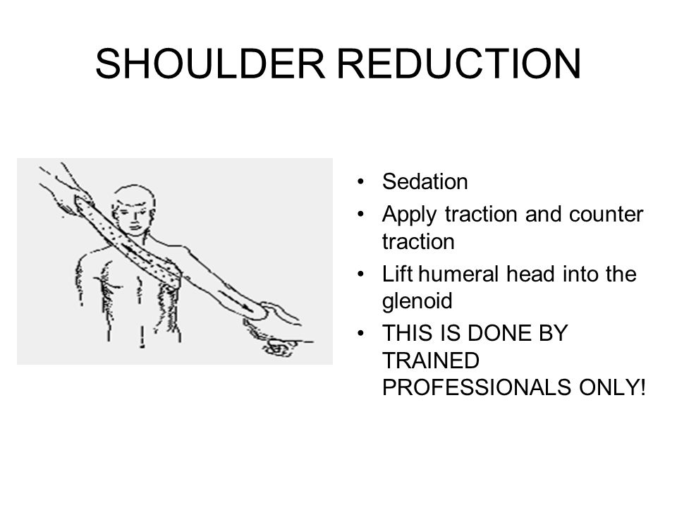 SHOULDER REDUCTION Sedation Apply traction and counter traction