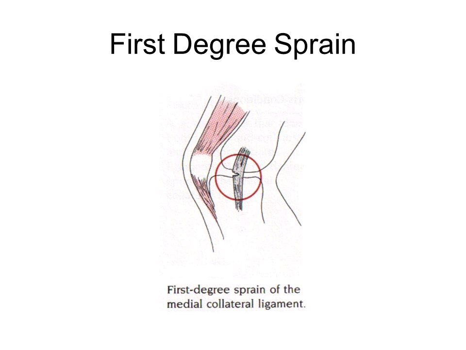 First Degree Sprain