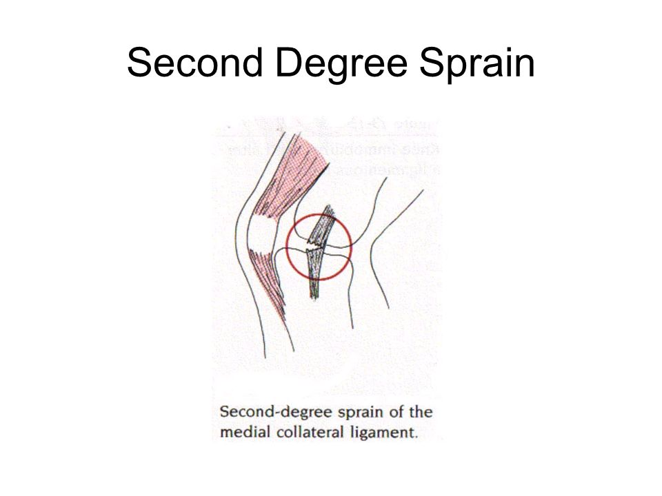 Second Degree Sprain