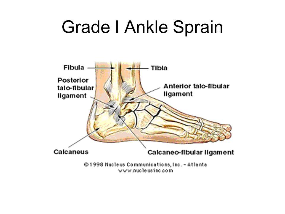 Grade I Ankle Sprain