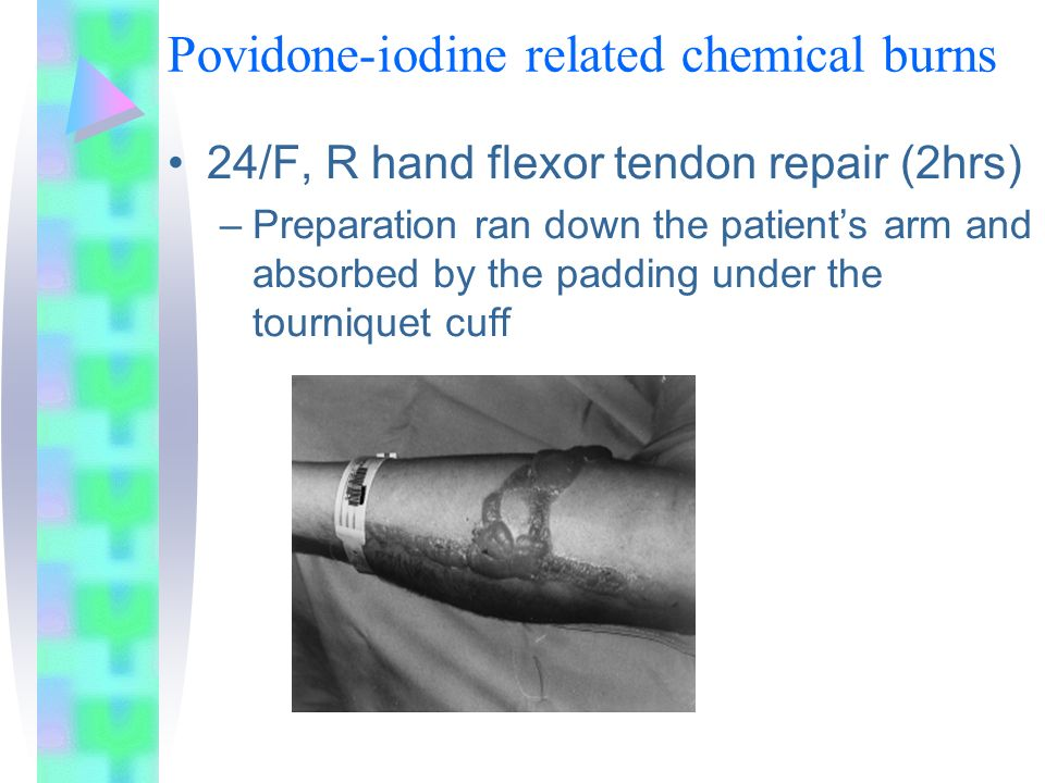 Povidone-iodine related chemical burns